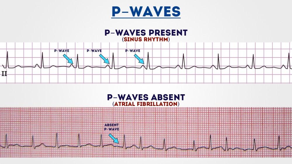 medium resolution of p waves 1
