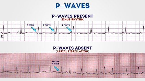 small resolution of p waves 1