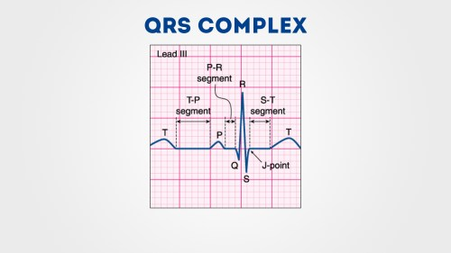 small resolution of cardiac axis explained