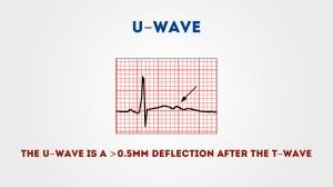 How to Read an ECG | ECG Interpretation | Geeky Medics
