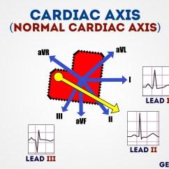 4 Lead Ekg Placement Diagram House Fuse Panel How To Read An Ecg   Interpretation Geeky Medics