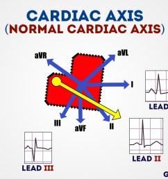 normal cardiac axis [ 1280 x 720 Pixel ]