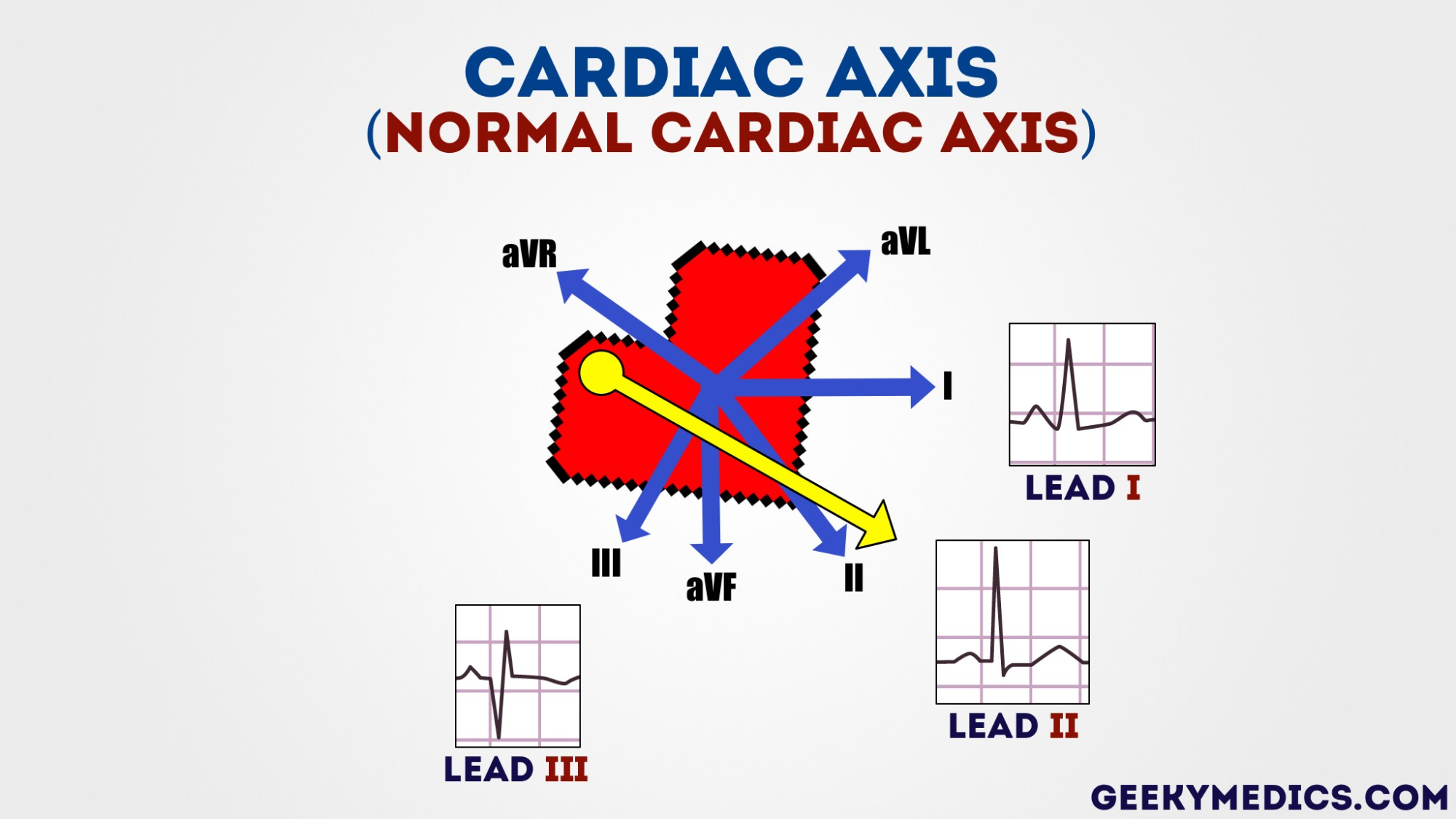 hight resolution of normal cardiac axis