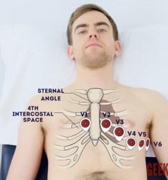 chest electrode positions [ 1280 x 720 Pixel ]