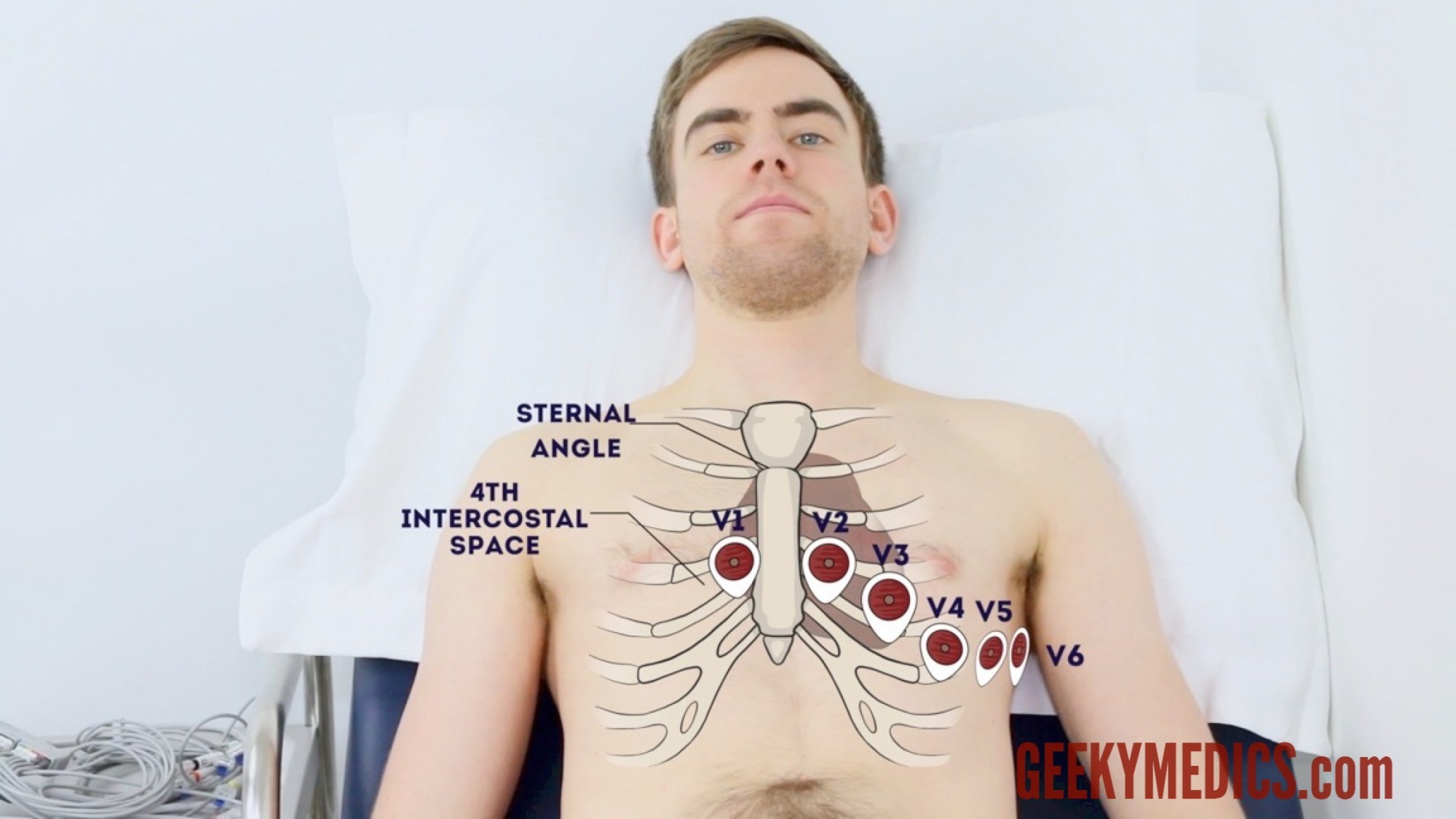 hight resolution of chest electrode positions