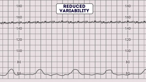 CTG - Reduced Variability