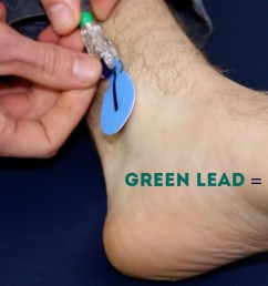 connect the green ecg lead to the electrode on the left leg [ 1280 x 720 Pixel ]