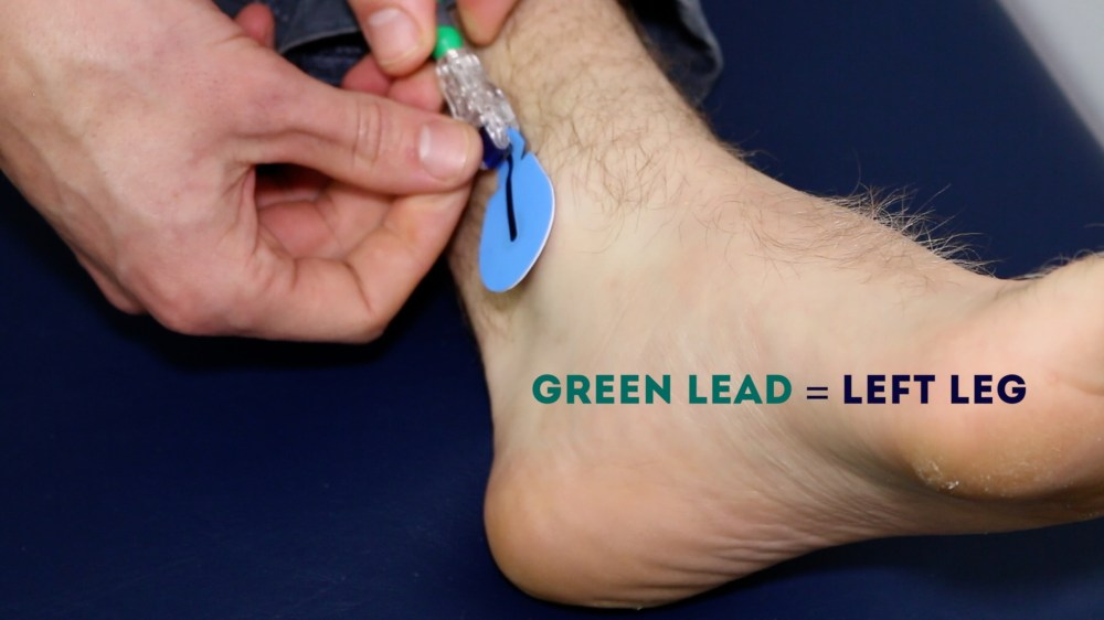 medium resolution of connect the green ecg lead to the electrode on the left leg