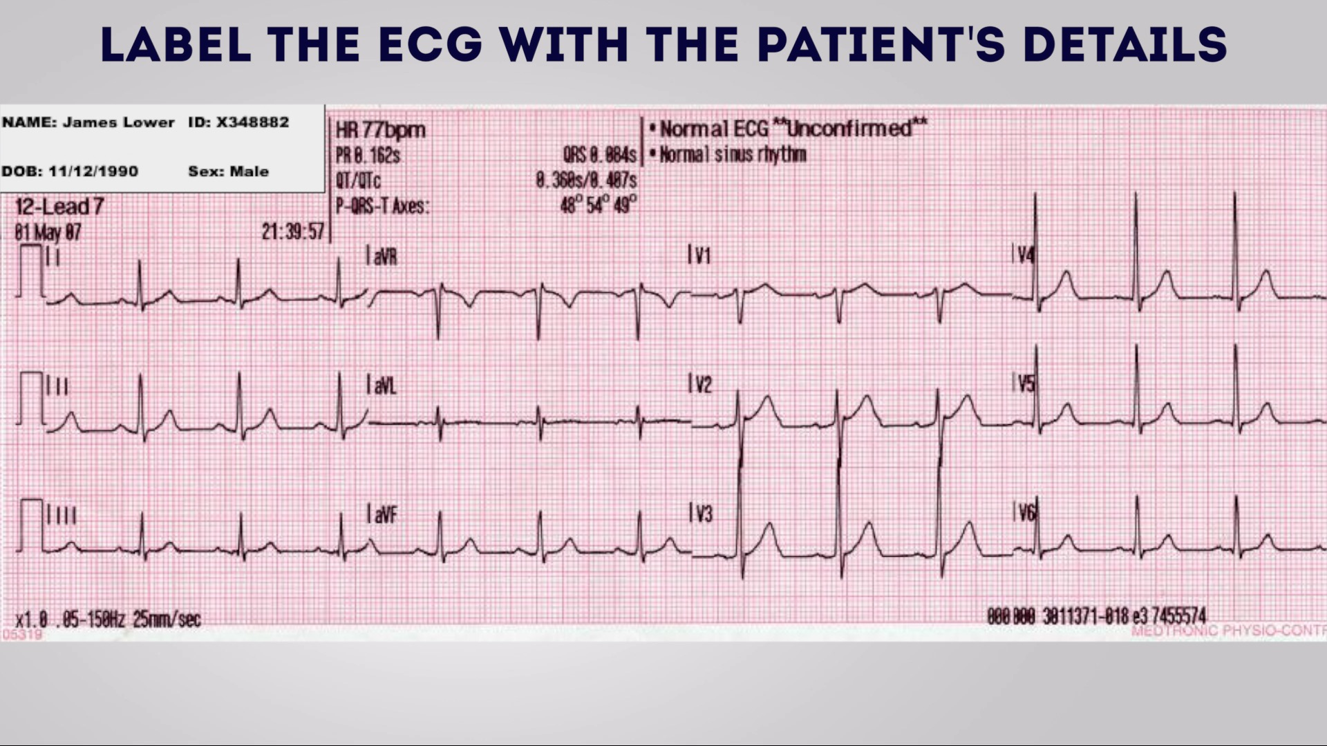 How to record an ECG - OSCE Guide | Geeky Medics
