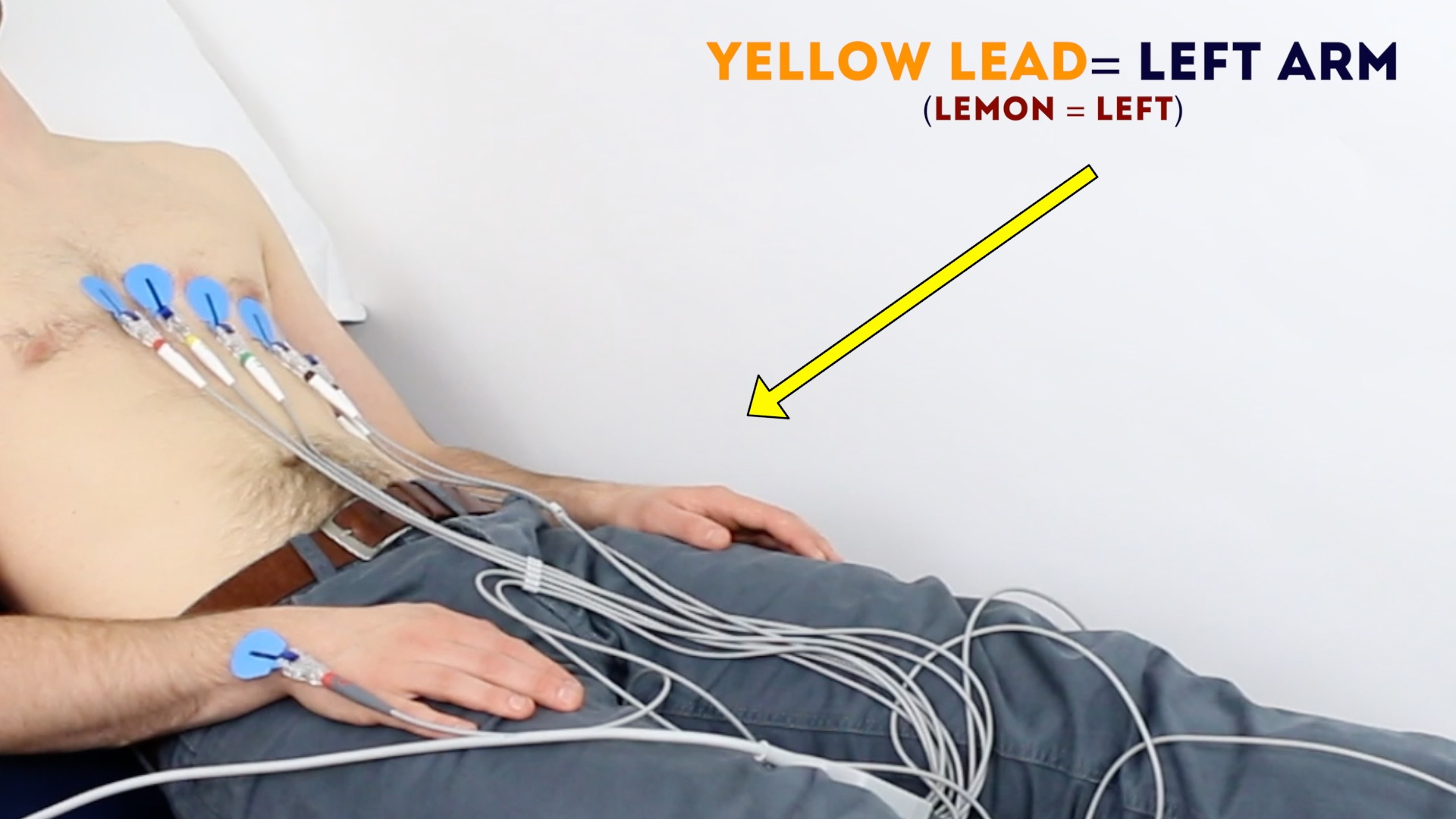 hight resolution of connect the yellow ecg lead to the electrode on the left arm