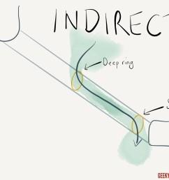 indirect inguinal hernia [ 1280 x 960 Pixel ]