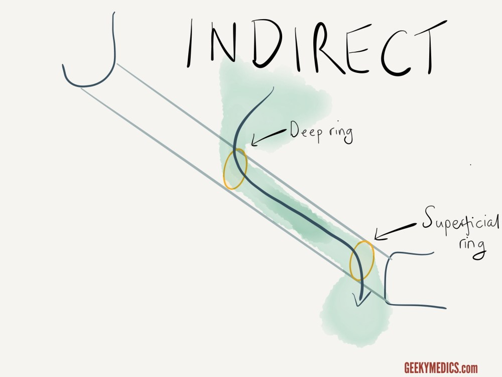 medium resolution of indirect inguinal hernia