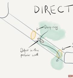 direct inguinal hernia [ 1280 x 960 Pixel ]