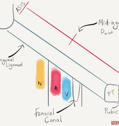 femoral canal anatomy [ 1280 x 960 Pixel ]