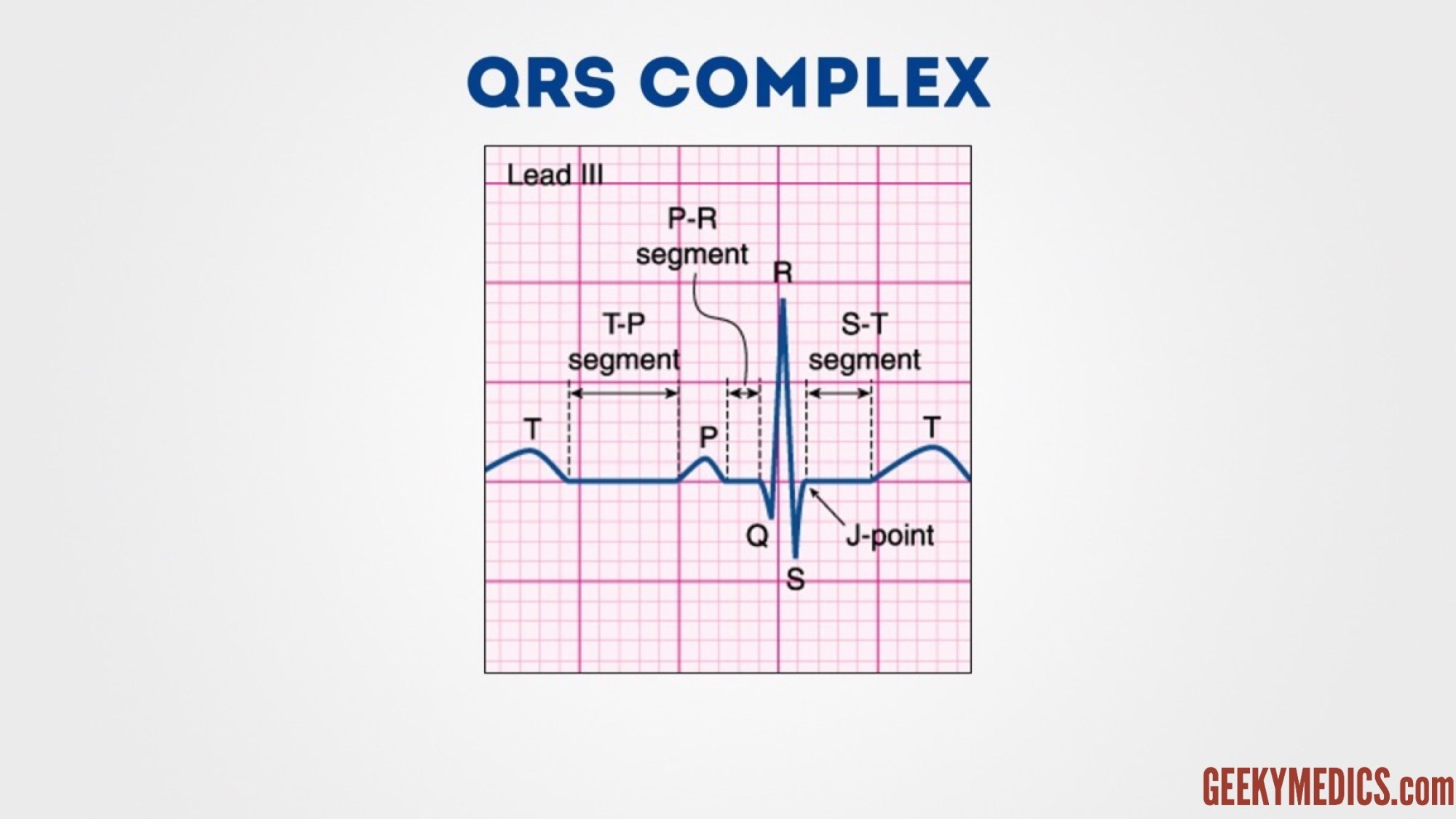 hight resolution of various components of an ecg