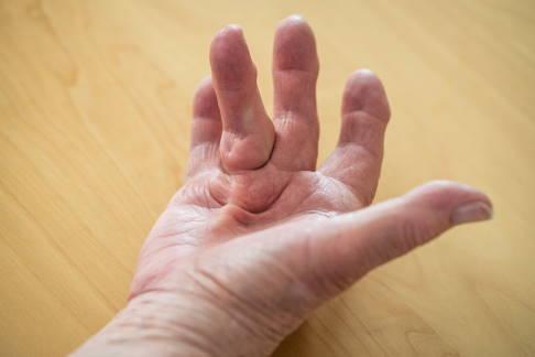 die finger nicht mehr strecken lassen