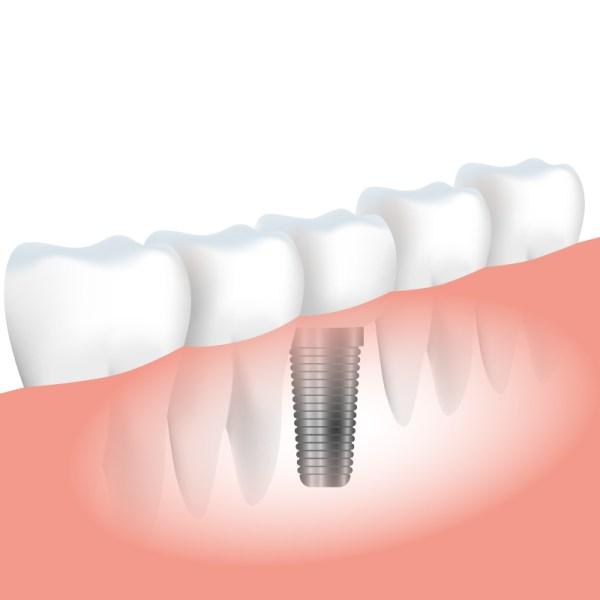 implant-1.jpg
