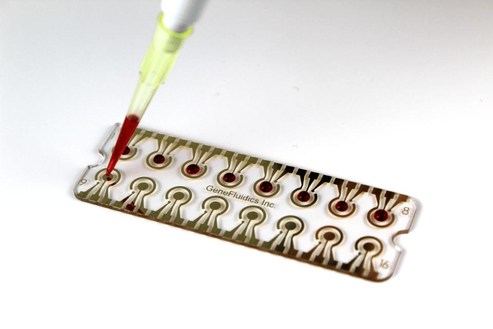 Genefluidics biosensor chip
