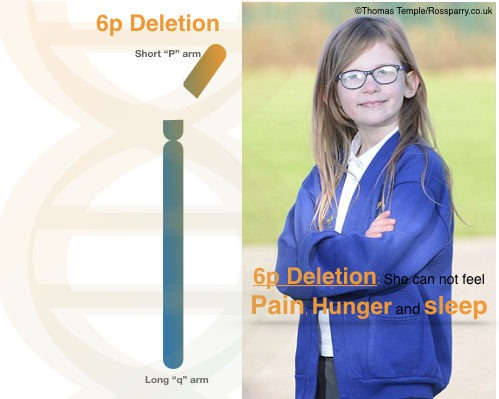 Chromosome 6p deletion: A reason for no pain, no hunger and no sleep