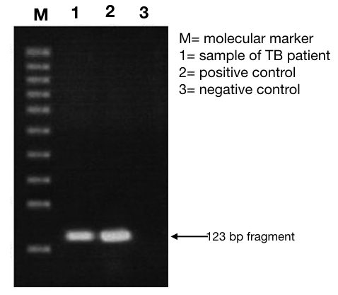 What is TB (Mycobacterium Tuberculosis) PCR?