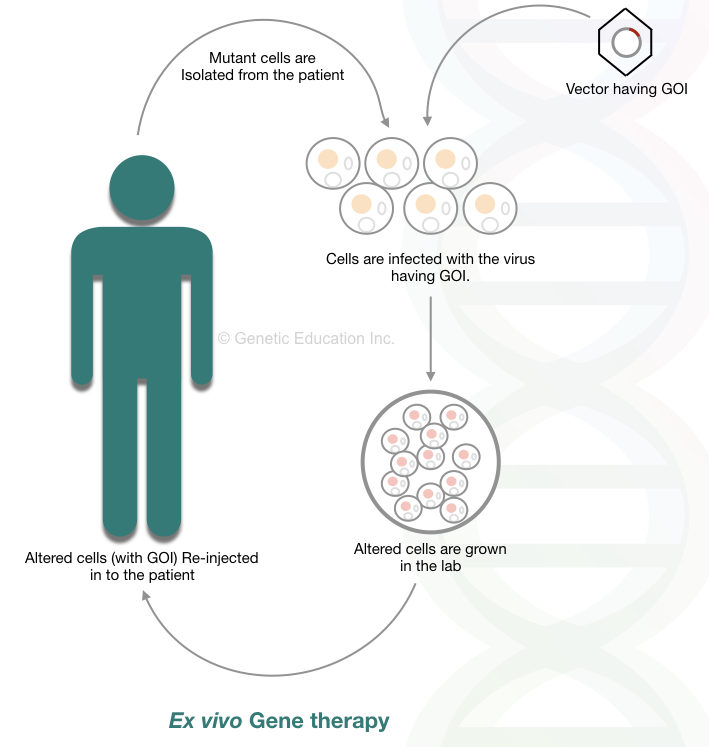 The method of ex vivo gene therapy