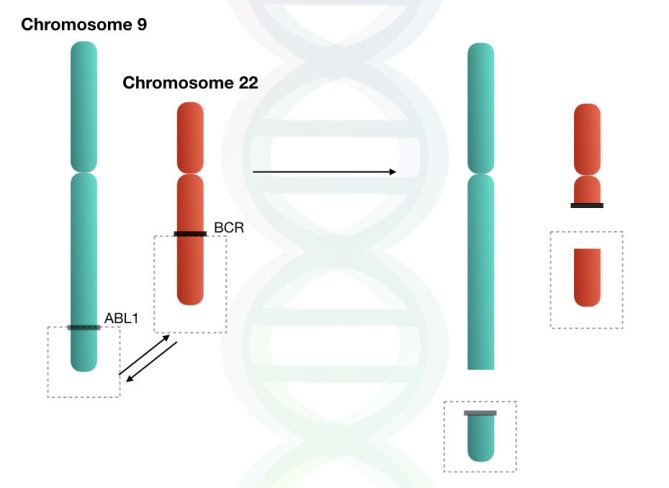 Image shows the reciprocal translocation between chromosome 9 and 22.