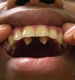 teethsupernumerary  [ 1156 x 1004 Pixel ]