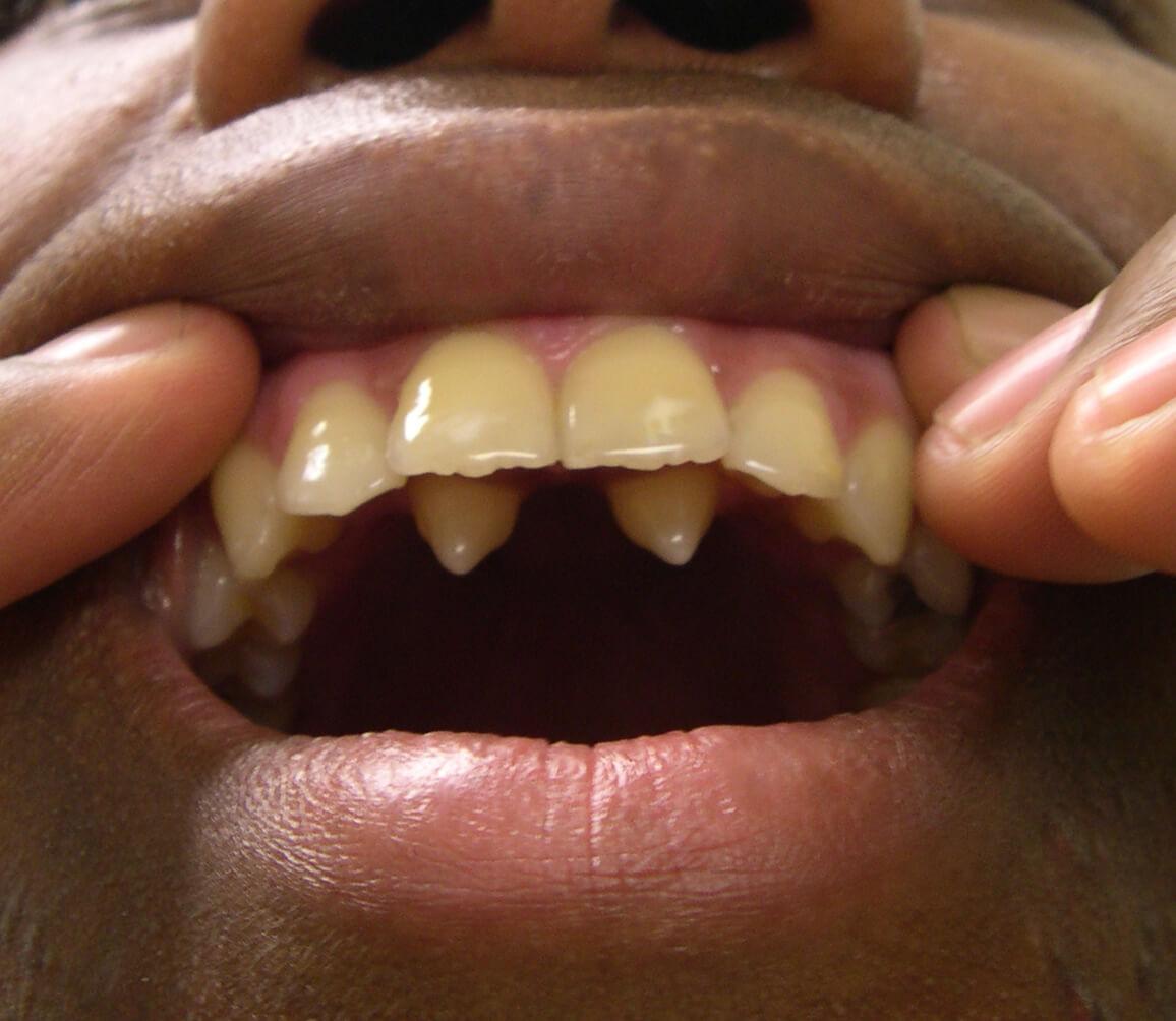 hight resolution of teethsupernumerary