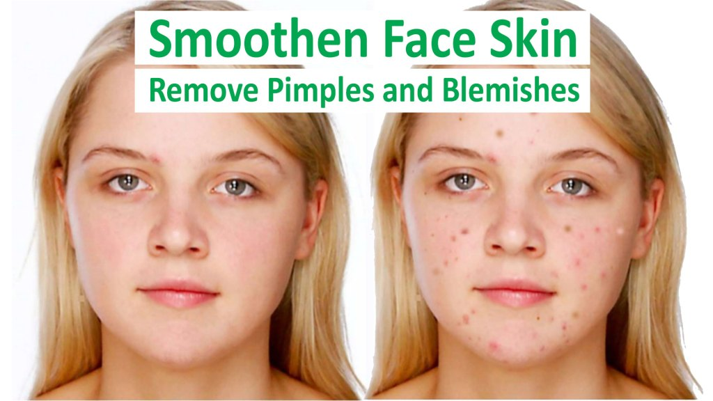Smoothen Face Skin, Remove Pimples and Blemishes in