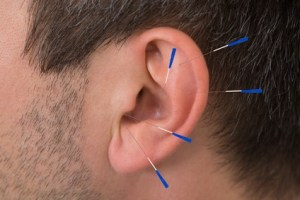 Acupuncture Needles On Ear