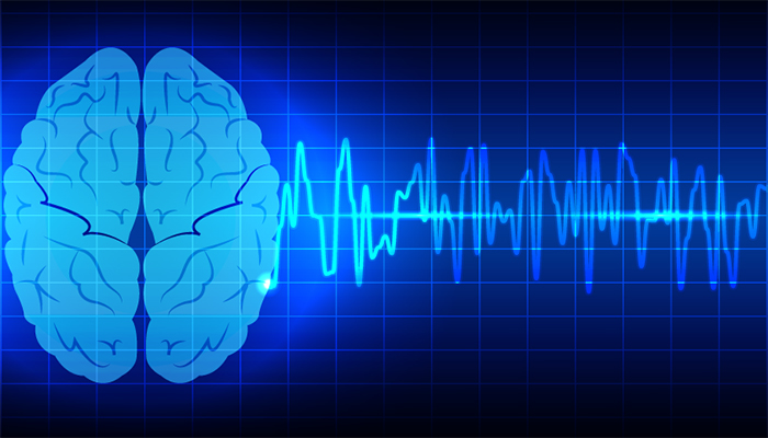 Emotions following a stroke
