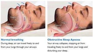 Sleep Apneoa