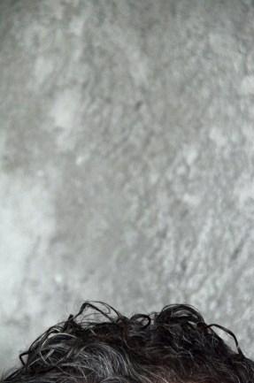 scalp (1)