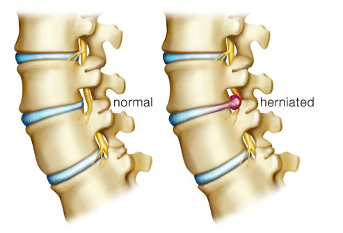 Chiropractic Beats Epidural Injections For Disc