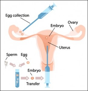 ivf process step by step