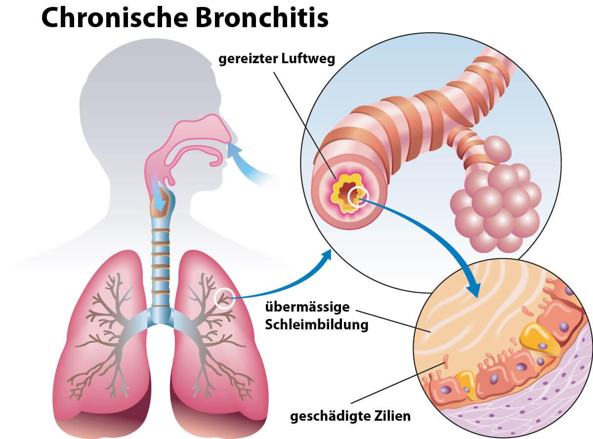 Bronchitis Symptome  Die typischen Anzeichen einer Bronchitis