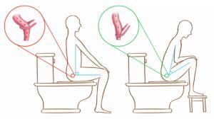 toilettensitzung