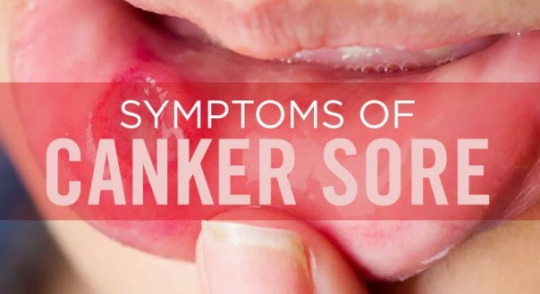 Signs and Symptoms of Canker Sores