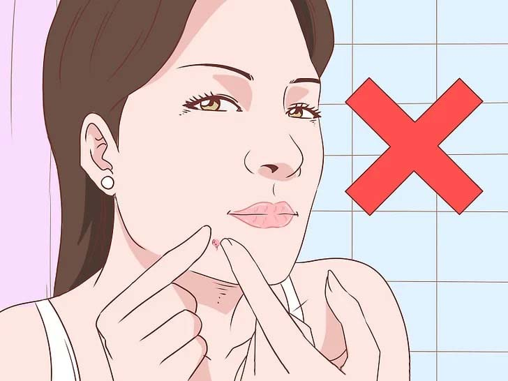 How to Expert Bring a Pimple to the Surface - Gethealthysoon.info