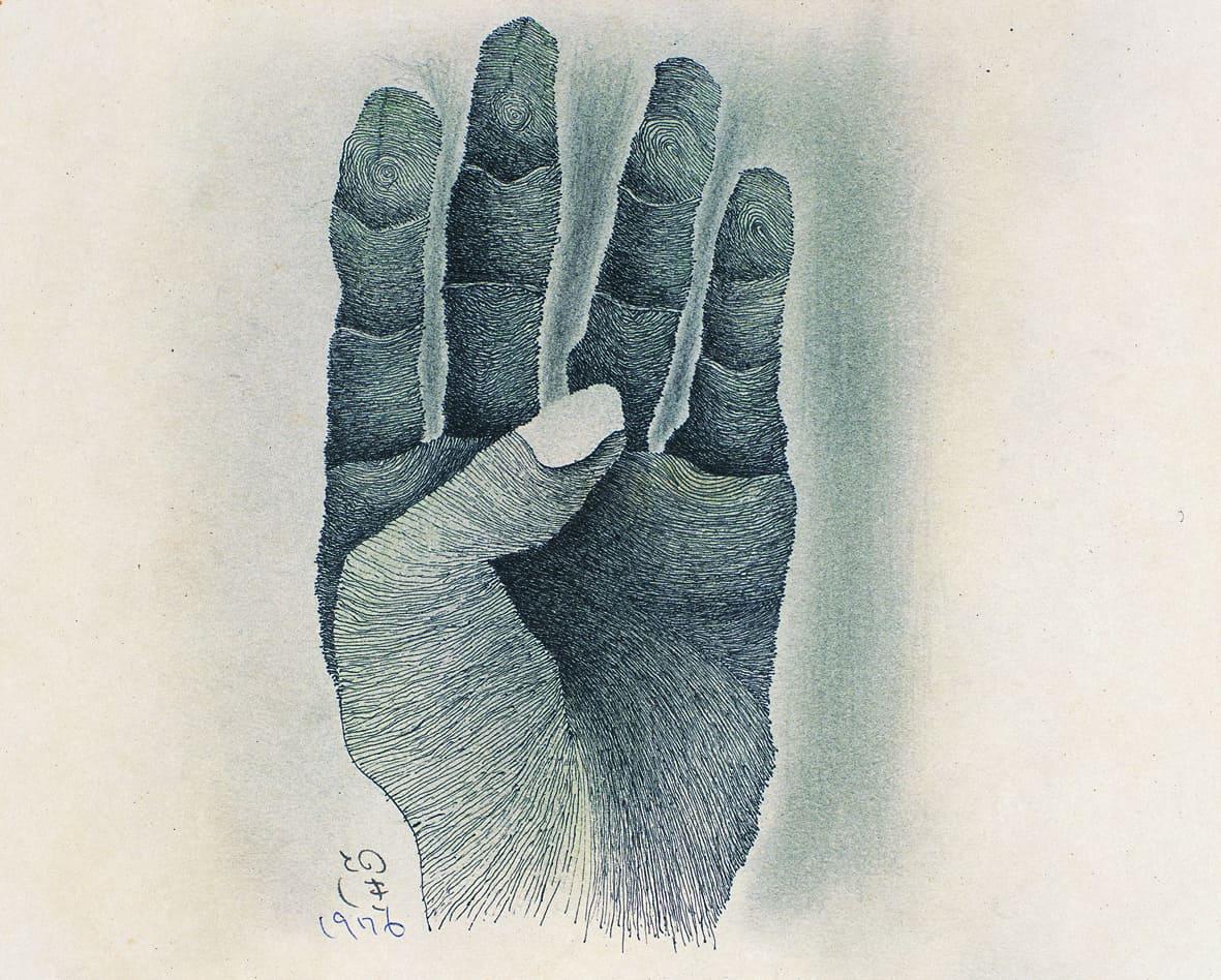 Hand, 1976, Shimonoseki City Art Museum
