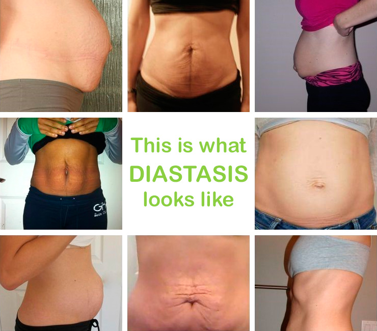 This is what Diastasis looks like