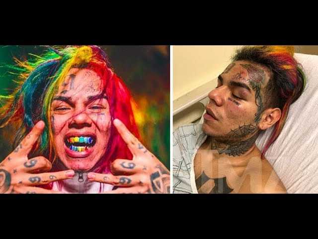 6ix9ine speaks out for the first time 'I was Knocked Unconscious TWICE, IT WAS A INSIDE JOB'