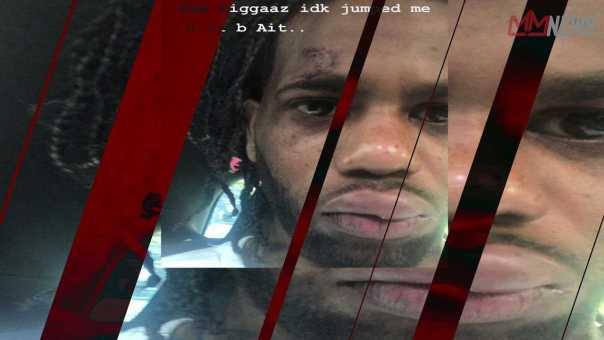 HoodRich Pablo Juan Jumped and Chains snatched by unknown goons [My Mixtapez News]