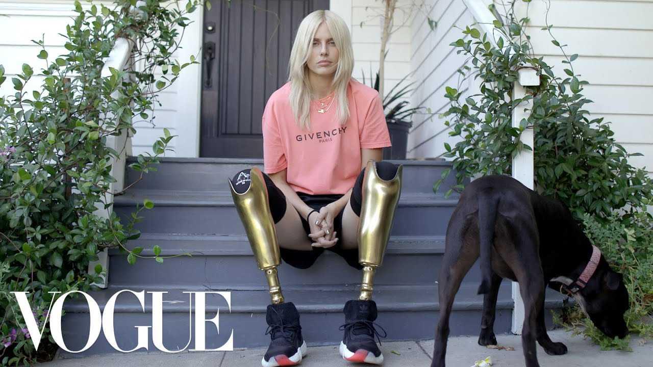 How Lauren Wasser, the Model With Golden Legs, Made a Triumphant Return   Vogue
