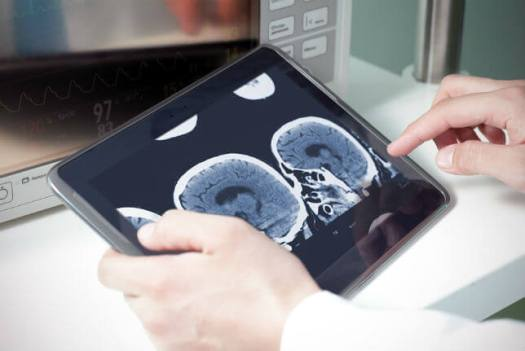 MRI_on_Tablet Rural Hospital Closures: How Telemedicine Could Provide Relief
