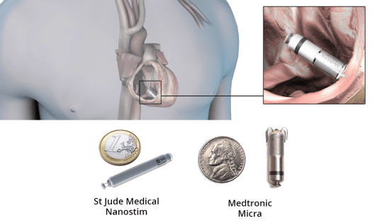 leadless pacemakers - 17 Amazing Healthcare Technology Advances