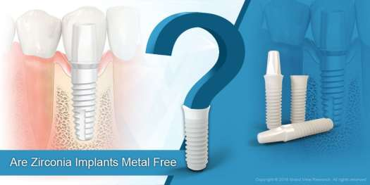 03  Are Zirconia Implants Metal Free  - Factors Impacting Dental Implants Market Growth