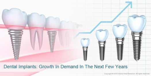 04 Dental Implants Growth In Demand In The Next Few Years  - Factors Impacting Dental Implants Market Growth