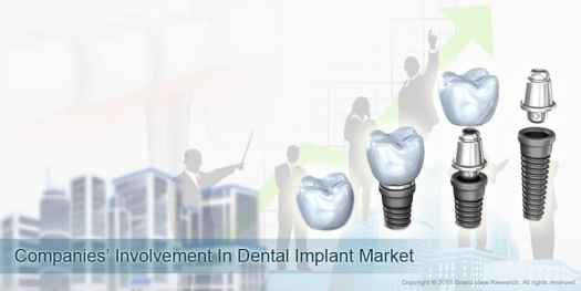 07 Companies Involvement In Dental Implant Market 01 - Factors Impacting Dental Implants Market Growth