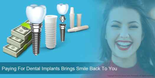 09 Paying For Dental Implants Brings Smile Back To You 02 - Factors Impacting Dental Implants Market Growth